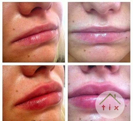 Увеличение губ- контурная пластика